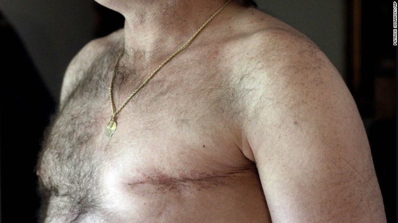 En-aumento-los-casos-de-cáncer-de-mama-en-hombres